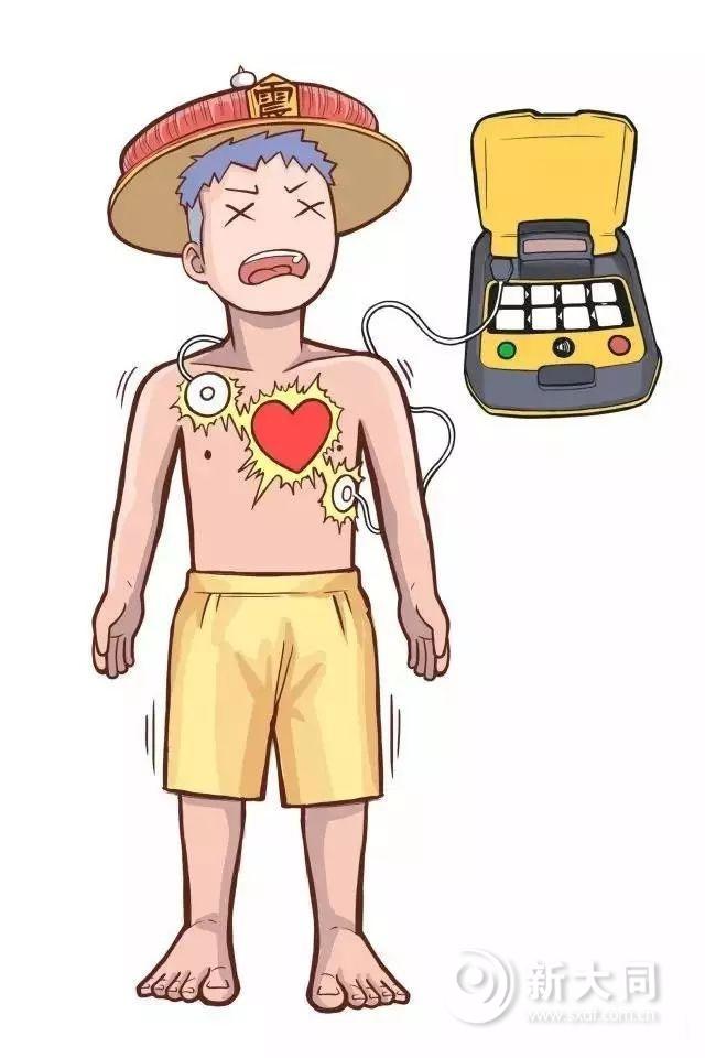 扩散!心脏骤停正确抢救